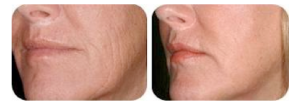 High Care berettyóújfalu kozmetika Fénnyel történő bőrfiatalításseprűvénák