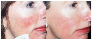 High Care berettyóújfalu kozmetika Rosacea érelváltozás kezelése