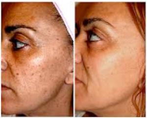 High Care berettyóújfalu kozmetika Pigmentált bőrelváltozások